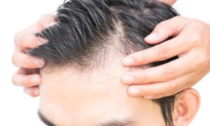 The Major Causes Of Male Hair Loss